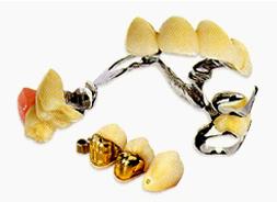 コンビネーション義歯