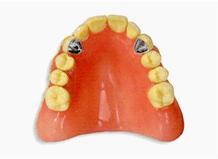 ハイブリッド義歯