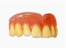 インプラントで支持された義歯(可撤性)