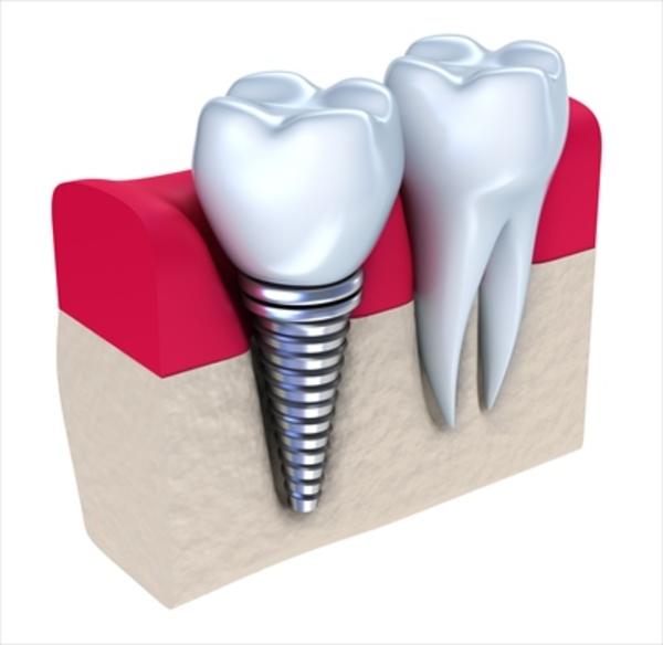 歯を失った時の強い味方、インプラントの特徴を徹底解説